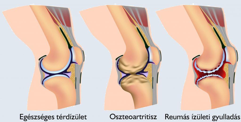 a térd kezelésének deformáló osteoarthritisének jelei)