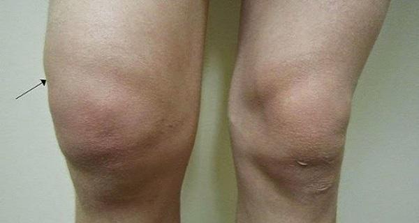 artrózisos kezelés vákuumbankokkal