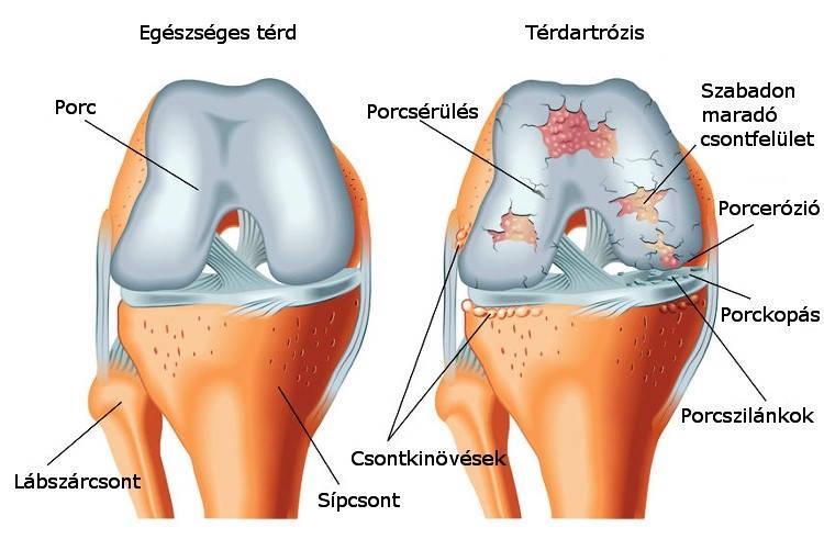 a térdízület kezelésének meniszkusz kürtjének károsodása