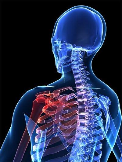 a vállízület ii. fokú artrózisának kezelése)