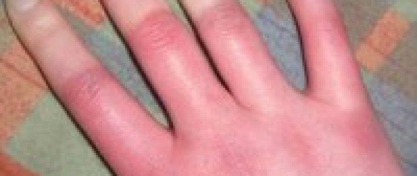 ujjak és kezek ízületi gyulladása)