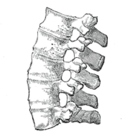 spondylarthrosis és a csípő gerincízületek ízületi gyulladása)