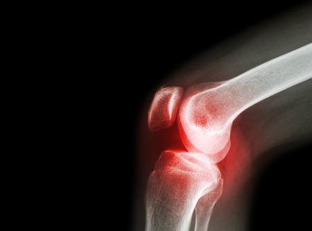 súlyosbodás artrózisos kezeléssel)