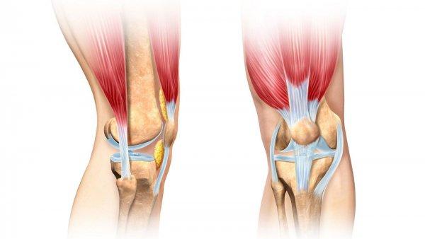 A lábon lévő sprainek jelei és kezelése
