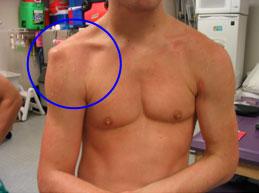 Erős sarokcsont-fájdalom? Vagyis hogyan kezelendő egy plantar fasciitis? – FASCIA blog