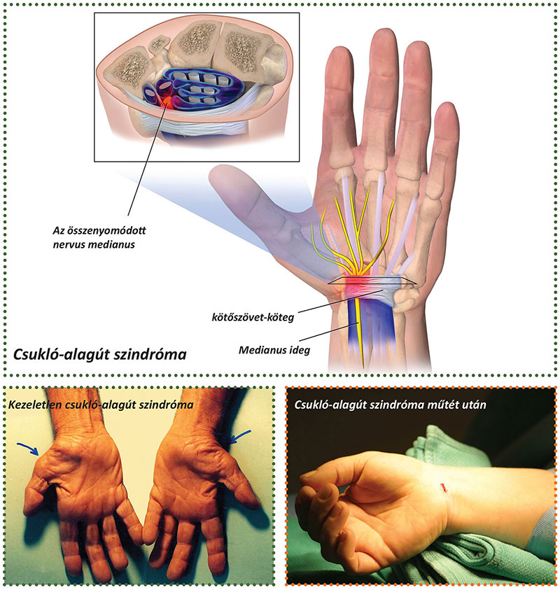 csukló sérülés szindróma