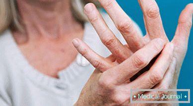 fájdalom és bőrpír az ujjak ízületeiben