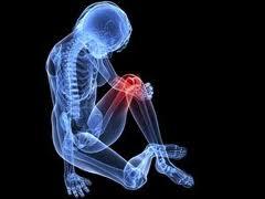 agyag artritisz artrózis kezelésére