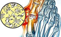 aki kezeli a köszvényes izületi gyulladást