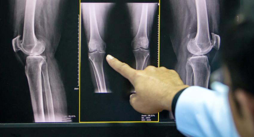 miért fáj a lábízületek a kezelés