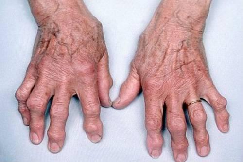 artrozis ozokerit kezelése)