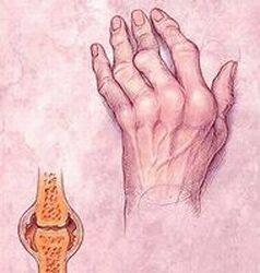 artrózis artritisz hidrogén-peroxid kezelés fájdalom a bal kezén