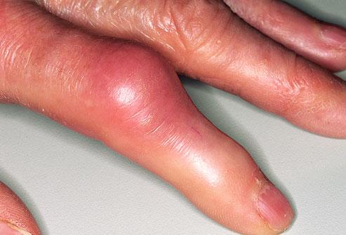artrózis kezelés lenmaggal