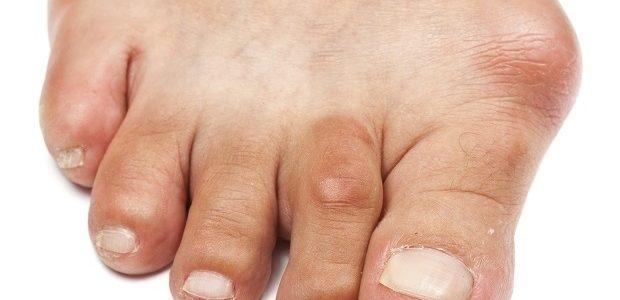 a vállízület osteochondrosis 2 fokkal súlyos fájó fájdalom az izmokban és az ízületekben
