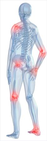 hatékony gyógyszerek a csípőízület artrózisának kezelésére