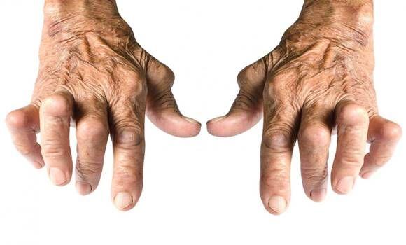 autoimmun osteoarthritis kezelés a lábak ízületeinek gyulladása