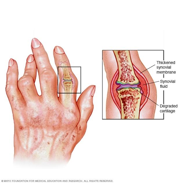 autoimmune rheumatoid arthritis symptoms)