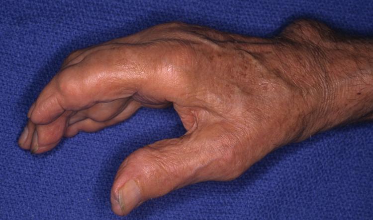 az ujjak ízületei összeroppantnak