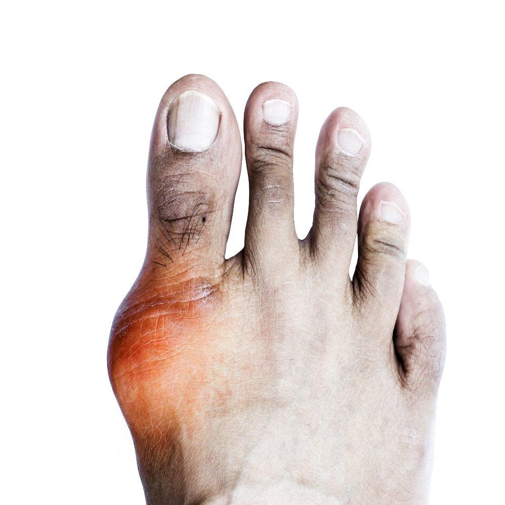 térdízület betegség tünetei és kezelése