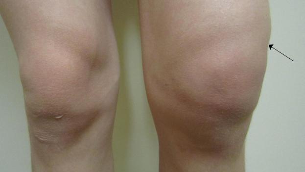 hirudoterápia a csípőízület artrózisának kezelésében