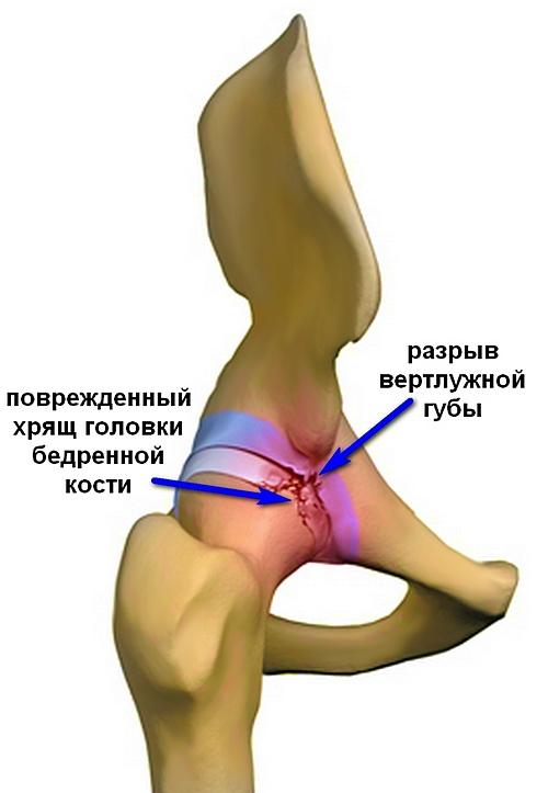 a csípőízület traumás károsodása