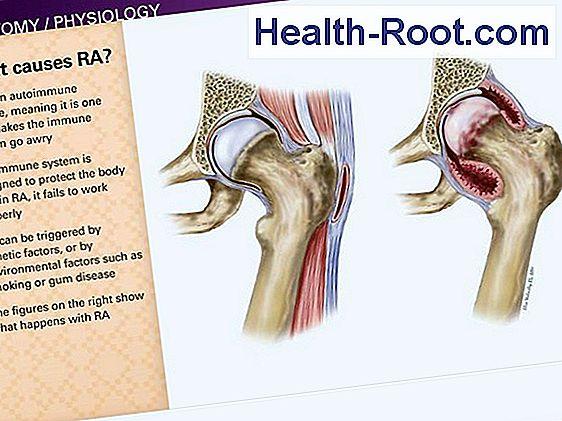 rheumatoid arthritis bokaízület)