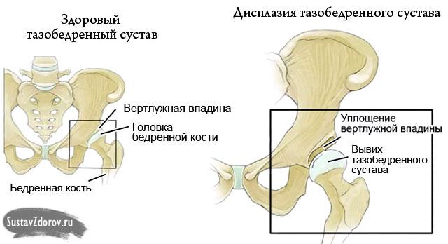 a gyaloglás hasznos a csípőízület artrózisában ízületek fáj a gerinc