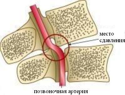 milyen jó kenőcs a nyaki osteochondrozissal szemben