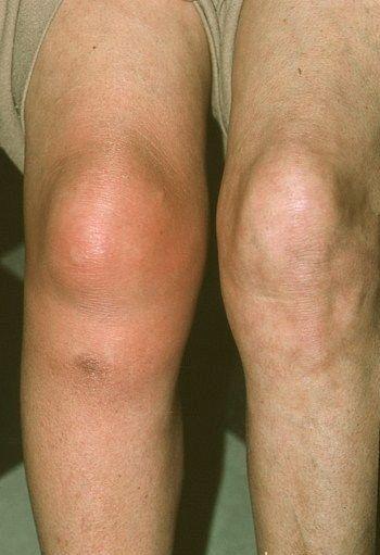 a bokaízület tünetei kezelésének szinovitisz)