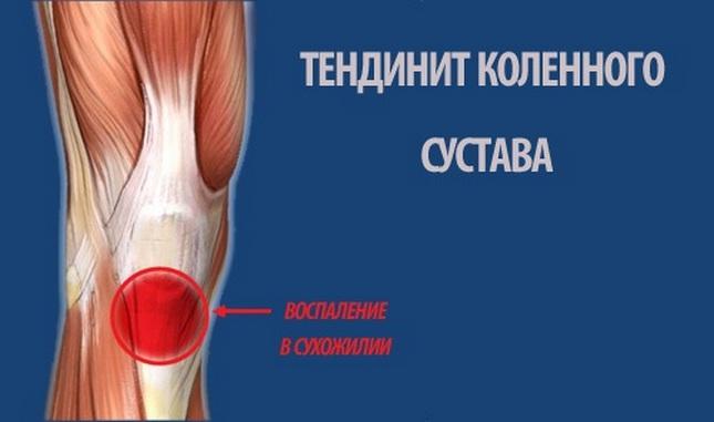 térdízületi helyreállítás bursitis