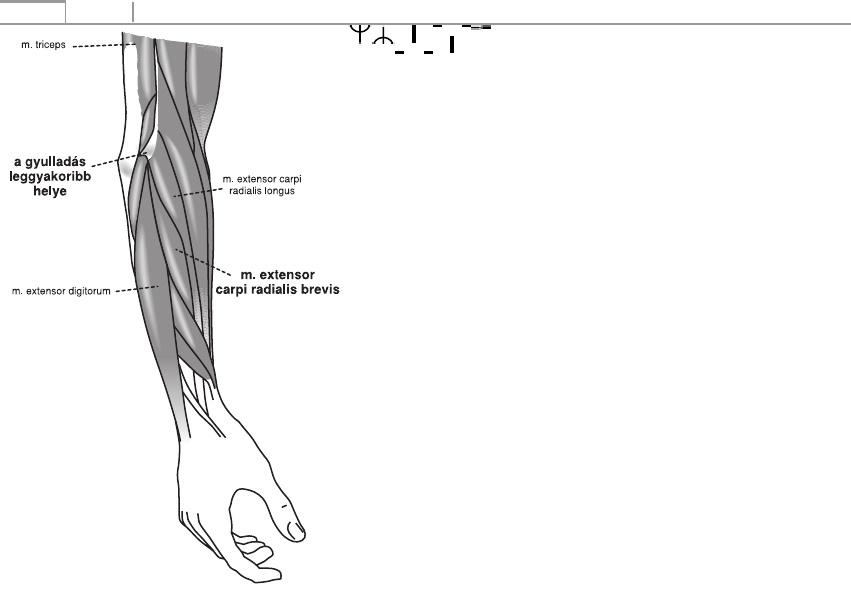 bokaízület periarthritis kezelése