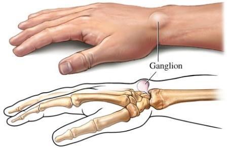 a 2. szakaszban a kéz ízületei ízületi gyulladása)