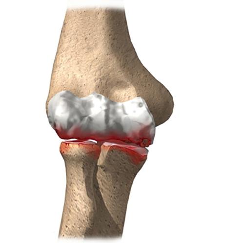mi okozza az ízület deformációját a deformáló artrózissal