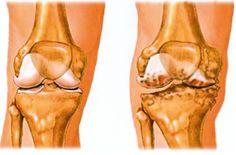 artrózis 3 fokos kezelési módszerek ízületi fájdalmak gyógyszerei a sportban
