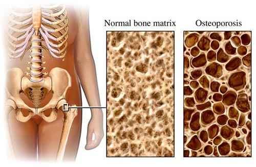 a csontritkulás tünetei