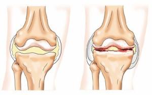 térdízületek deformációja progeszteron és ízületi fájdalmak