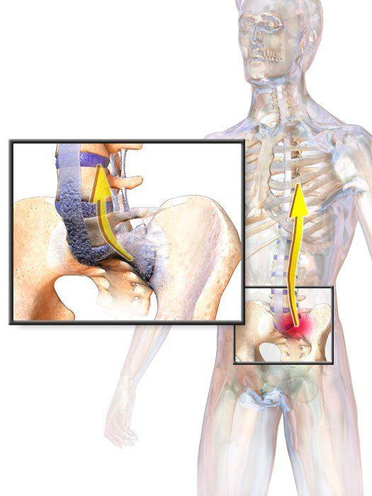 ankylosing spondylitis ízületi fájdalom)