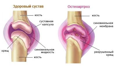 az érrendszeri artrózis kezelése