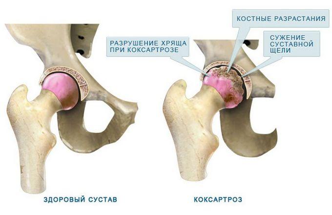 chondroprotektorok a térd kenőcsének artrózisához)