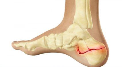 A csípő fájdalma, a lábfej feladásával - Sérülések
