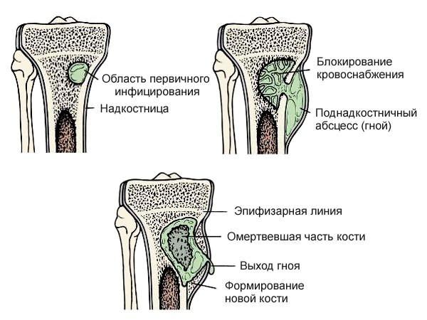 csípőízületek gyulladása)