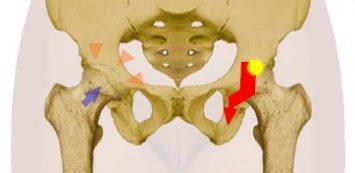csípőízületi fájdalom sarok