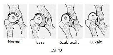 csípőízületi instabilitás kezelése