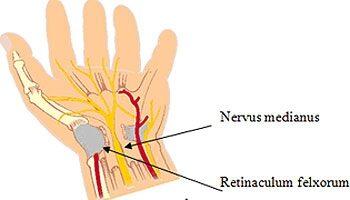 csuklóalagút-szindróma kezelése