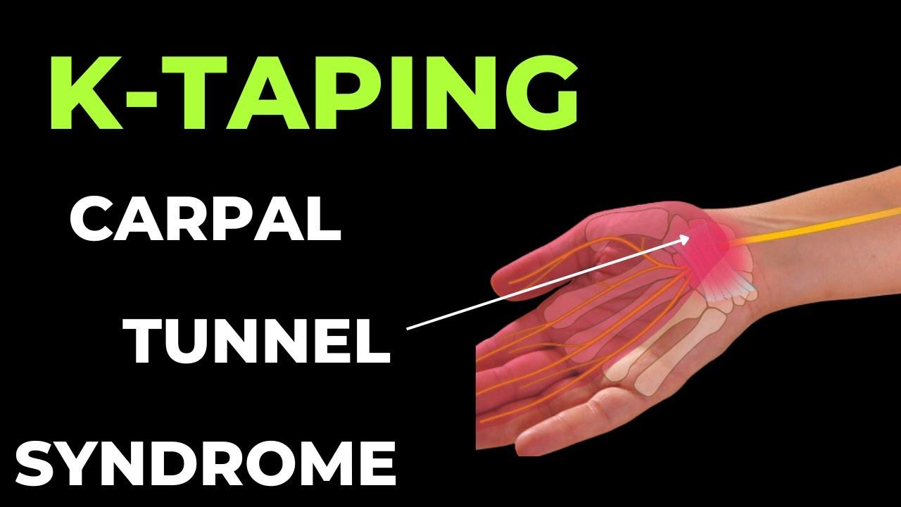 csuklószindróma kezelés
