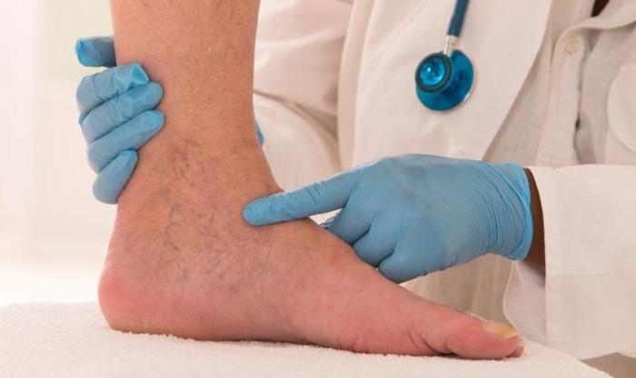 láb boka betegség poszttraumás csontritkulás kezelés