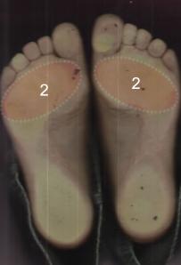 lábujjak alatti fájdalom hogyan lehet boka sérülést kapni