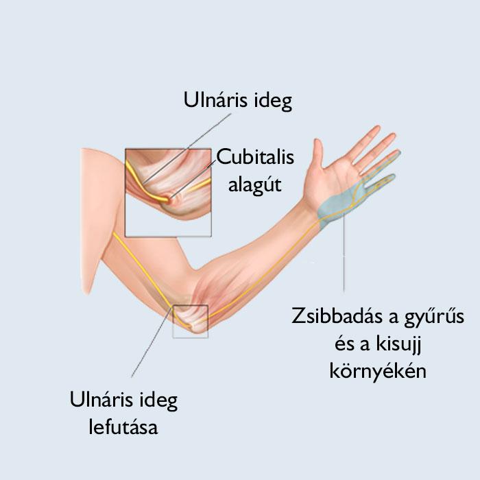 ulnar ízületi fájdalom)