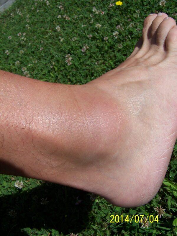 a láb boka sérülése)