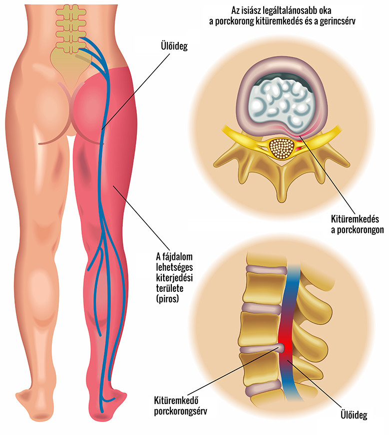 csípőideg-megsértési tünetek és kezelés hogyan lehet kezelni az ujjak ízületeinek betegségét